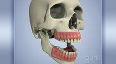 SinusCavityExpansion   #phoenix #mesa #kids #dentist