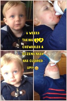 Amazing results for this little chap! Just 6 weeks taking Juice Plus Chewables! (all natural and suitable for children) Eczema completely cleared up! Juice Plus+, Apple Juice, Healthy Juices, Get Healthy, Juice Plus Berry Capsules, Juice Plus Chewables, Juice Plus Results, Juice Plus Complete, Juice Cleanse Recipes
