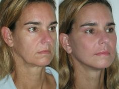 How To Look Younger With Facial Toning And Exercises: Utilize Face Workouts To Plump Up Skinny Cheeks