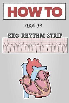 Texas Tech Nursing, Nursing Cheat Sheet, Ekg Interpretation, Ventricular Tachycardia, Cardiac Rhythms, Heart Rhythms, New Nurse