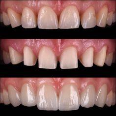 Diastema closure with six IPS e.max press veneers. Thanks to Cdt. @sibelkucukel for lab work Diş arası boşluklarının altı adet IPS e.max pres lamina vener ile kapatılması.  Laboratuvar işlemleri için Cdt. @sibelkucukel teşekkürler  #emax #laminate #veneer #smiledesign #estheticdentistry #dentalphotography #cosmeticdentistry #prosthodontist #dentist #dentistry #lamina #yaprakporselen #gülüştasarımı #dişestetiği #dişhekimi #ozgurbultan #vivadent #nişantaşı