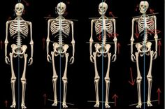 efectos esqueleticos