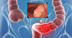 Colon cancer is the second leading cause of cancer mortality in America. Unfortunately, most people with colon cancer do not have any symptoms in the early stage of the disease. Although this type of. Homemade Colon Cleanse, Colon Cleanse Diet, Natural Colon Cleanse, Colon Cancer Symptoms, Types Of Cancers, Natural Cures, Healthy Tips, Healthy Food, Home Remedies