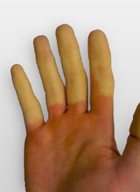 Hand showing cold fingers caused by Raynaud's Disease (Picture by Patrick Callahan)