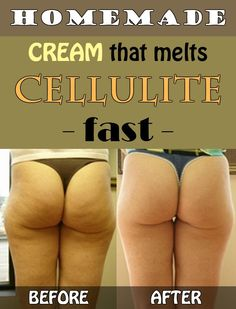 Homemade Cream That Melts Cellulite Fast