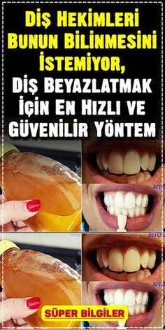 To whiten teeth is often offered by dentists .- To whiten teeth is often offered by dentists … - Teeth Health, Oral Health, Common Spices, Loose Tooth, Receding Gums, Oral Hygiene, Teeth Cleaning, How To Slim Down, Dental Care