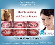Thumb Sucking and Dental Braces