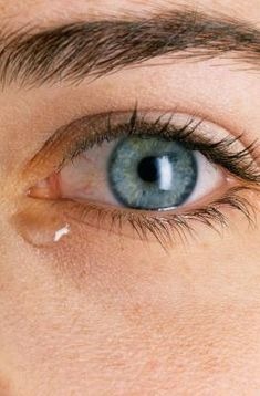 How To Stop Watery Dry Eyes Do you have watery eyes? Looks like you are crying all the time, eyes are sore, red, irritated. Ocular Rosacea, Rosacea Causes, Dry Eyes Causes, Acne Rosacea, Rosacea Remedies, Health Remedies, Dry Eye Treatment, Natural Remedies, Make Up