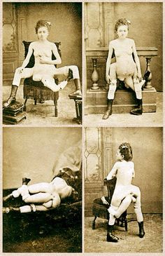 Blanche Dumas, born Martinique third leg attached to her sacrum, and two primary legs said to be imperfectly developed. Creepy, Scary, Sideshow Freaks, Human Oddities, Laurence, Vintage Circus, Interesting History, Weird And Wonderful, Special People