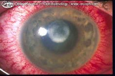 WHY YOU SHOULDN'T OVERWEAR CONTACT LENSES.This is an eye which overwore its contact lens and went swimming in a lake.  The resulting corneal ulcer could be blinding at the worst, sight distorting at the best.