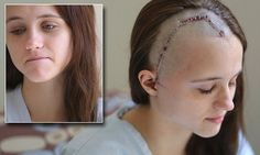 Teen domestic assault victim shows her horrific scars after ex attack