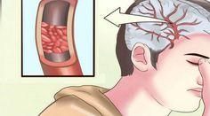 Чтобы быть здоровым, кровеносные сосуды должны быть в порядке! Налет на стенках сосудов и атеросклеротические бляшки — одна из основных причин таких опасных заболеваний, как инфаркт и инсульт. Закупо…