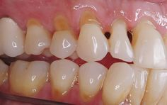 Dental abfraction is categorized as a non carious cervical tooth lesion