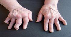 Estes são os 2 melhores e mais baratos remédios para artrite, reumatismo e dores nas costas
