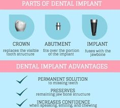 dental implant cost for one tooth in bangalore