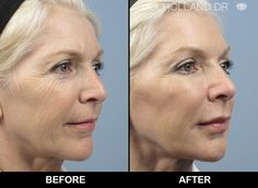 botox-face-lifting-before-and-after-photo-of-toronto-patient-of-spamedica-3.jpg (1096×800)