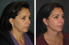Dr Andrew Jacono – Mini Facelift Before and After with Deep Plane Technique – – Care – Skin care , beauty ideas and skin care tips Bad Plastic Surgeries, Plastic Surgery, Mini Tummy Tuck, Mini Face Lift, Facelift Before And After, Eyelid Lift, Lip Augmentation, Neck Lift, Skin Resurfacing