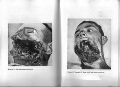 'WAR against WAR' - shockingly powerful WW1 photographs from Ernst Friedrich's classic anti-war book