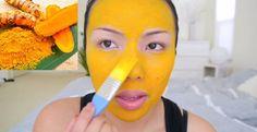 La pelle del viso è una delle zone più delicate del corpo. Sempre più persone hanno problemi di acne, eczema, rossore, infiammazione, macchie scure, occhiaie, peli superflui erughe. Se la pelle del tuo viso presenta una di queste sintomatologie probabilmente questamaschera fai-da-te fa al caso tuo. La curcuma ha molteplici effetti cosmetici sulla pelle, tra i quali: Previene la disidratazione della pelle Riduce gli eczemi, le macchie ed eventuali arrossamenti Lenisce le infiammazioni…
