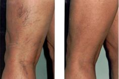 If your varicose veins and spider leg veins are causing you discomfort, you may need to consult for the laser treatment in Chicago. Simple laser treatment, sclerotherapy & many more… Varicose Vein Remedy, Varicose Veins Treatment, Varicose Vein Removal, Spider Vein Treatment, Nail Treatment, Natural Treatments, Fibromyalgia, Natural Remedies, Home Remedies