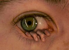 Do you have something in your eye?