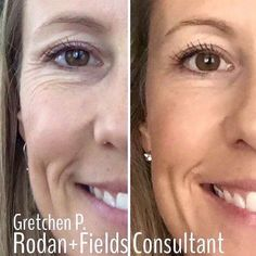 Real results real people!!!!!! Who doesn't know the proactiv doctors? They created an anti-aging skin care line! Amazing. Check out my link on my Instagram. . . . . . . #vsco#coffeelover#coffeeaddict#rodanandfields#postthepeople#dallas#blogger#foodie#love#thatsdarling#pursuepretty#finditlivit#nothingisordinary#liveauthentic#makeuo#eyelashes#mua#beauty#love#skincare#acne#sunspots#wrinkleremover#fashion#hair#style#beauty#dallas#boston#lowell#ocblogger by changingskinchanginglives00