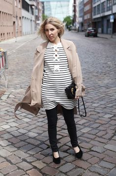 Trench, H&M, Conscious, Stripes, Coat, Maje, Kleid, Lace up, Stripes, Layering, Stella McCartney, Ballet Pumps, Asos, ootd, lotd, look, Style, Streetstyle, Fashion, Blog, stryleTZ