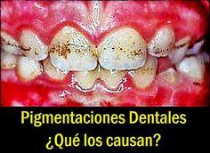 Pigmentaciones Dentales. ¿Qué los causan? | Directorio Odontológico