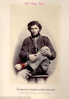 Private John L. Gray from the Virginia Infantry, holds his foot aloft, showing where gangrene has infected a gunshot wound
