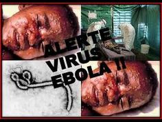 "New Hot Video Ebola Will Be Used As ""Bio-Terrorism"" According To CDC- Vi..."