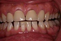 Răng sứ Margin không còn lo làm đen viền nướu răng sứ