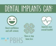 Dental implants can benefit you! #dentalimplant #wespeakdental #PBHS #healthy #healthyteeth #confidence #dental