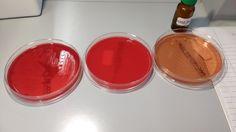 Clostridium on blood and macconkey plates (no growth with O2 or on macconkey)