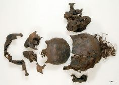 Moora Bog Body (Mädchen aus dem Uchter Moor) Germany Skull and hairs. - National Geographic
