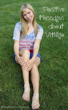 Inspiration and encouragement from people with vitiligo #vitiligo #bodyimage