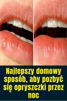 Opryszczka lub pęcherze gorączkowe są wynikiem zakażenia spowodowanego wirusem opryszczki pospolitej . Chociaż łagodne wskazują, że twój układ odpornościowy jest zagrożony. Pierwszym krokiem jaki należy podjąć w przypadku opryszczki jest oczyszczenie organizmu z toksyn, aby zapewnić Lipstick, Health, Lipsticks, Health Care, Salud