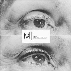 #Beauty #MicrobladingHessen #Micropigmentation #MIAAesthetics #Microblading #Eyebrows #Augenbrauen
