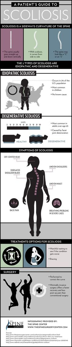 Treatment options for scoliosis include watchful waiting to see if the condition gets worse, bracing, and surgery. Check out this Houston degenerative scoliosis infographic to learn more about these options and how they can help.