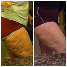 Body Wrap Results | www.azwrapparty.com / These are MY RESULTS with 2 ItWorks Body Wraps ...