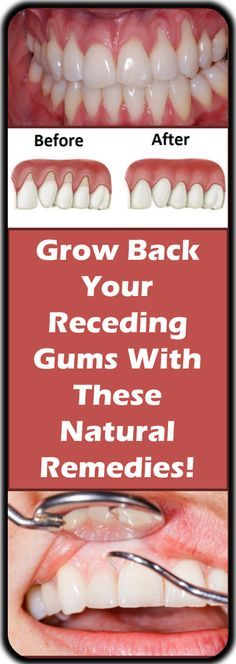 If you are experiencing receding gums then you have found a great article to read. In this article you will find 9 of the best home natural remedies to help grow back your receding gums. Your gums are not something you should ignore, especially if you are...