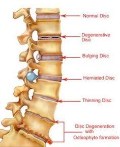 Lower Back Pain Remedies Lower Back Pain Remedies - Chinese Style | @Bette Barnett