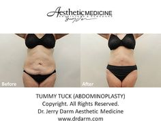 Dr. Darm, Tummy Tuck Before and After - RT