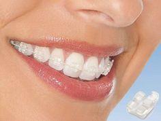 teresina piaui implantes dentarios ortodontia luiz gustavo oliveira especialista dentista clinica odontologica dentes dentarios implantodontista tratamento de canal endodontia periodontia enxerto osseo melhor