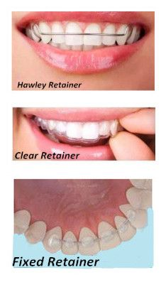 The most important thing after removing braces is preventing the teeth from shifting, in order to keep the teeth in place a retainer must be worn. However, when it comes down to choosing which type of retainer is best? Teeth After Braces, Braces Smile, Dental Braces, Smile Dental, Dental Care, Types Of Braces, Braces Tips, Braces Retainer, Clear Retainers
