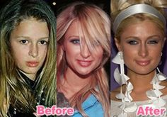Paris Hilton nose job