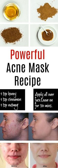 Eliminate Your Acne-Remedies - Natural Acne Mask - Free Presentation Reveals 1 Unusual Tip to Eliminate Your Acne Forever and Gain Beautiful Clear Skin In Days - Guaranteed! Homemade Acne Mask, Homemade Skin Care, Diy Mask For Acne, Homemade Acne Remedies, Makeup For Acne, Masks For Acne Scars, Homemade Facials For Acne, Facemasks Homemade, Diy Facemasks For Acne