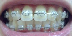 ceramic+braces+gray+bands | Photo taken: 05 Jan 2013 Dental Braces, Teeth Braces, Power Chain Braces, Silver Braces, Cute Braces Colors, Lingual Braces, Ceramic Braces, Braces Bands, Brace Face