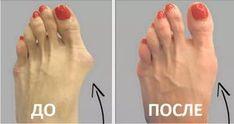 Пока неясно, почему врачи держат это в секрете? Вот как избавиться от косточки на ступне с помощью совершенно естественного метода!