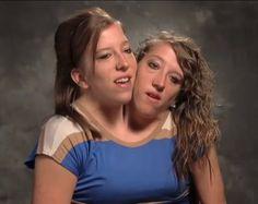 Abby e Brittany Hensel sono due gemelle siamesi con due teste e un solo corpo. La loro è una condizione rarissima e sono state soggetti di molti documentari