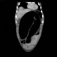 Whirlpool sign of sigmoid volvulus | Radiology Case | Radiopaedia.org